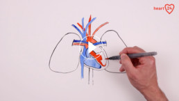 Aortenklappenstenose-defekte Herzklappe-TAVI-Erklärfilm